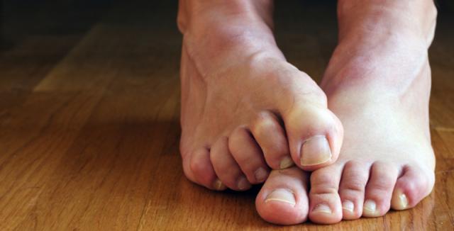 113b4ac9874 Páchnoucí nohy jsou velmi častým problémem